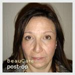 borstlift belgie